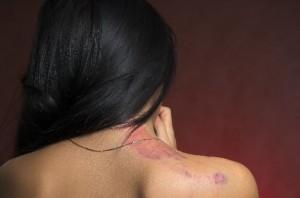 הליכים לשחזור העור לאחר פציעות